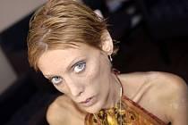 Ve Francii vypukla diskuse hlavně poté, co v roce 2010 zemřela na anorexii mladá francouzská modelka a herečka Isabelle Carová, která se angažovala proti této nemoci ve světě modelingu.