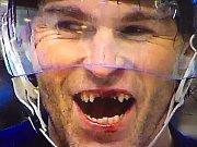 Jaromír Jágr bez zubů