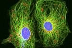 Rakovinné buňky s průměrem okrouhlých jader asi 12 mikrometrů ve speciálním mikroskopu na zkoumání živých buněk. Ilustrační foto.