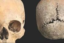 Analýza tisíc sto let staré lebky odhalila dávný zločin