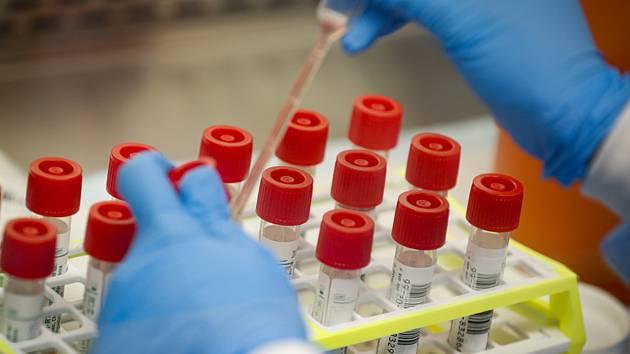 Testy na koronavirus. Ilustrační snímek