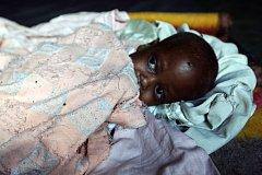 V Etiopii je vážně podvyživeno 40 procent dětí.