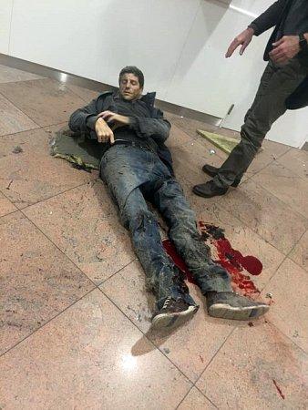 Při teroristickém útoku na letišti vBuselu byl zraněn ibývalý basketbalista Prostějova Sebastien Bellin.