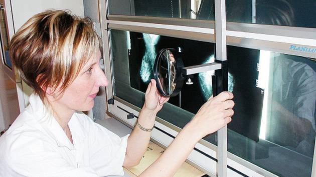Specialistka mamodiagnostického pracoviště Ústavu radiodiagnostického Fakultní nemocnice Ostrava lékařka Markéta Pernicová.