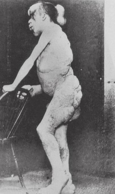 Sloní muž Joseph Merrick