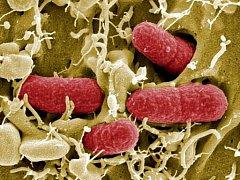 Bakterie zvaná enterohemoragická Escherichia coli