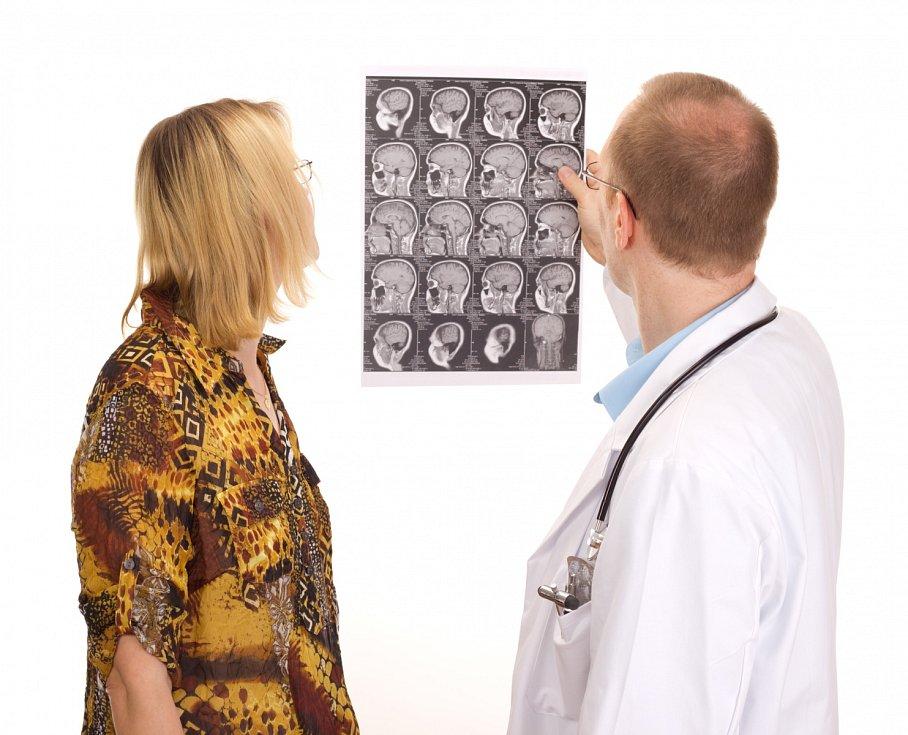 Roztroušená skleróza je nemocí mladých lidí. Propuká obvykle mezi 20.– 40. rokem věku