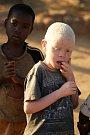 Malawi je také jednou ze zemí, kde jsou ve velkém pronásledováni a zabíjeni albíni. Místní věří, že jejich části těla mohou léčit a nosí štěstí