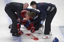 Zkrvavený Lars Eller z Montrealu poté, co ho tvrdě sejmul do hlavy Erik Gryba z Ottawy.