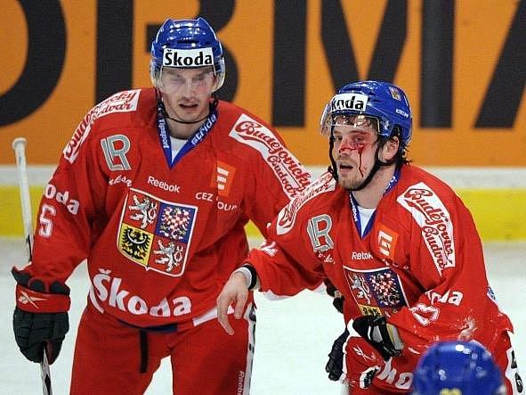 Petr Koukal si odnesl z duelu se Švédy krvavý šrám.