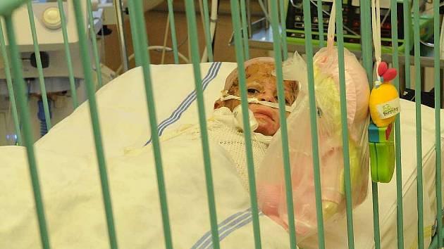 Natálka Kudriková se zotavuje po náročných operacích