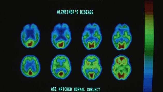 Počítačový scan mozku stiženého Alzheimerovou chorobou.