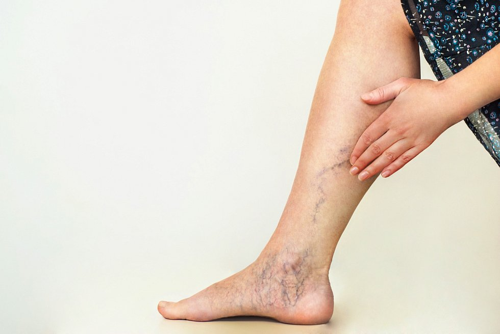Metličky a křečové žíly jsou nejčastějším viditelným příznakem chronického žilního onemocnění
