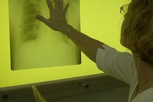 Rentgenový snímek plic. Ilustrační snímek
