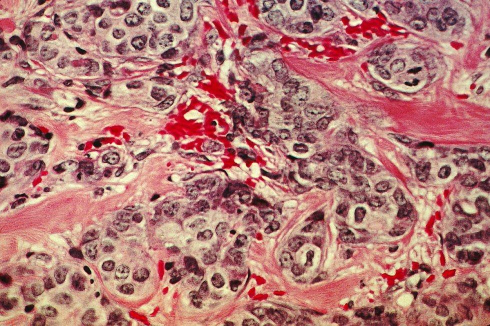 Histologický snímek rakovinné prsní tkáně. Růžově zbarvené toky představují normální pojivovou tkáň, tmavě jsou zbarveny rakovinné buňky