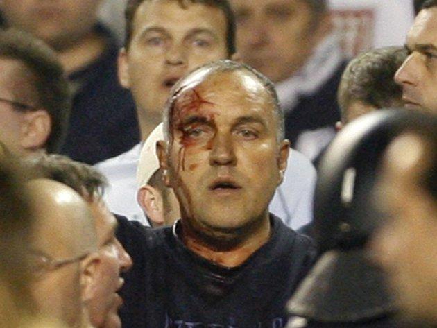Jeden ze zraněných fanoušků při násilnostech ze čtvrtečního zápasu v Seville.