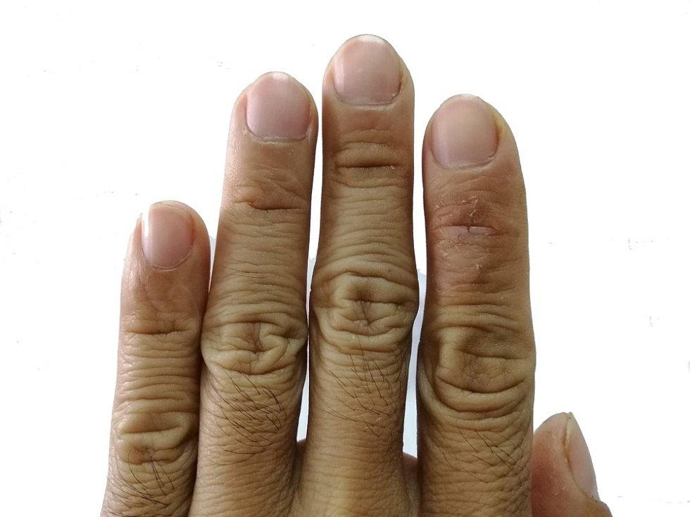 Dochází k nadprodukci kolagenu a také k vazivovatění a zužování až zanikání cévek.