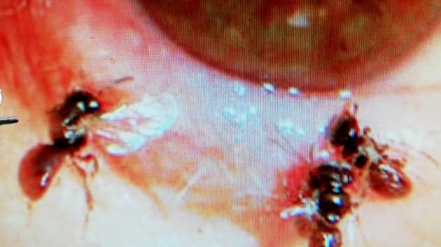 Ženě z Tchaj-wanu se v oku uhnízdily čtyři včely