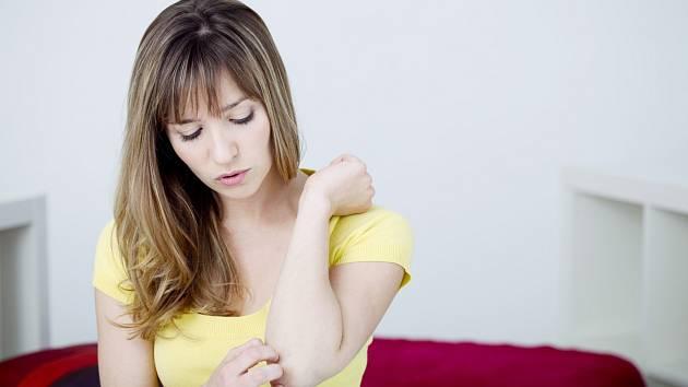 Psoriatická artritida je chronické zánětlivé onemocnění postihující klouby.