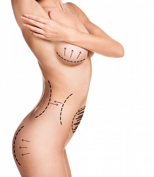 Obličej, prsa, břicho, kolena i intimní partie. To všechno můžete mít díky šikovnosti moderní medicíny jako zamlada, nebo dokonce lepší. Připravte se však, že to zadarmo nebude.