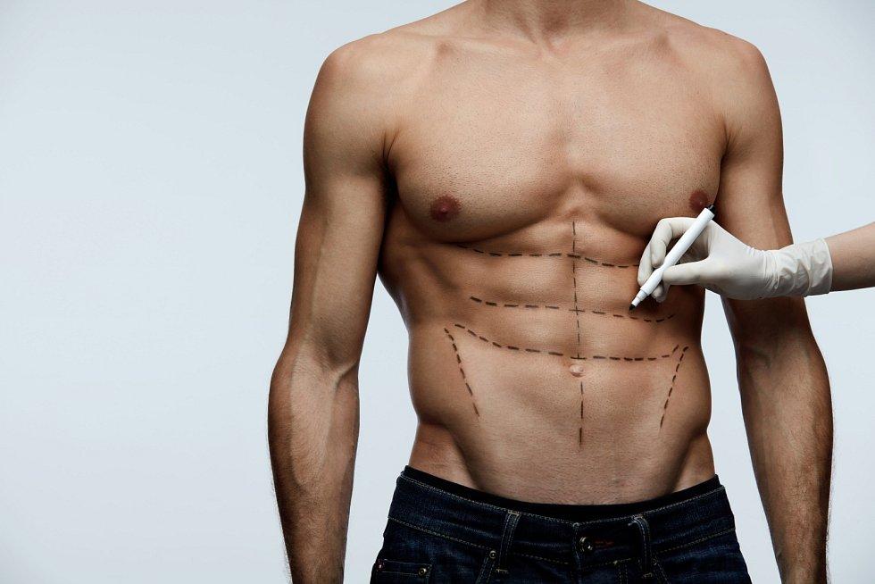 Takzvaná abdominoplastika. Spočívá v obnovení plochého a rovného břicha.