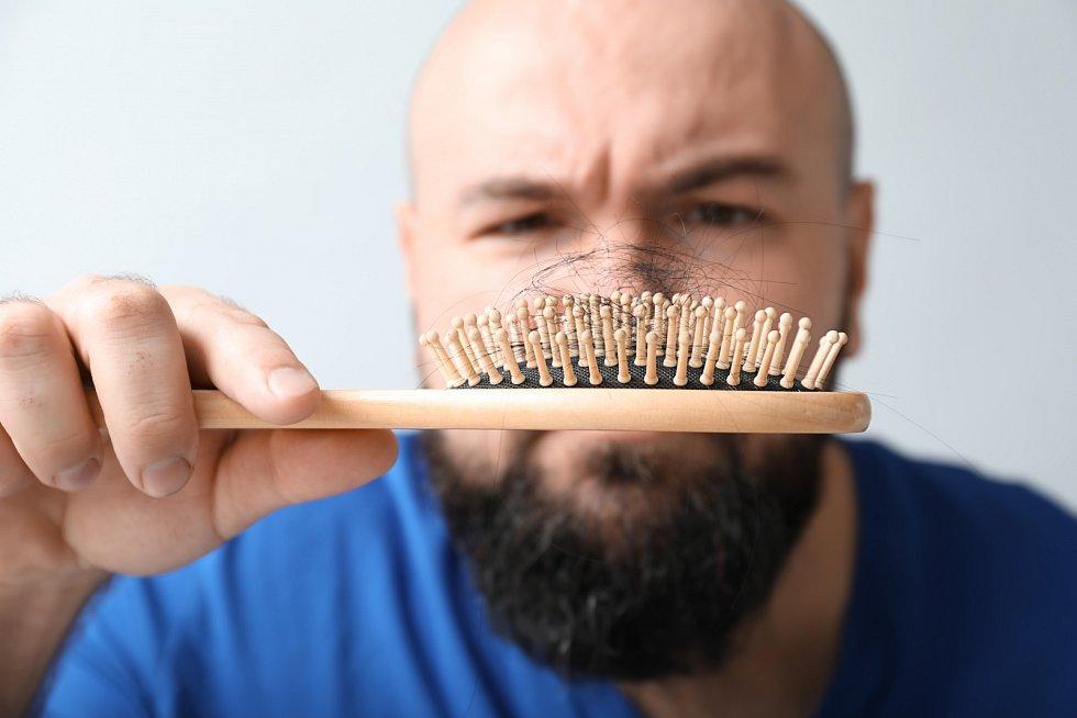 Lze rozlišit několik typů alopecie, nejčastější formou je mužská plešatost. Vypadávání vlasů postihuje téměř polovinu mužů nad 40 let.