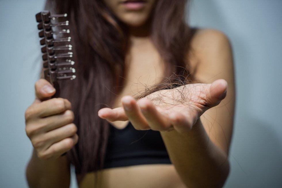 Vypadávání vlasů netrápí pouze muže, ale i ženy.