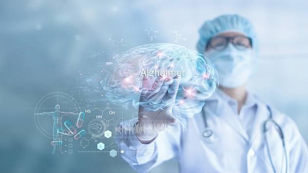 V boji s Alzheimerovou chorobou se nabízí nová zbraň, vědci ji však zatím ještě zkoumají
