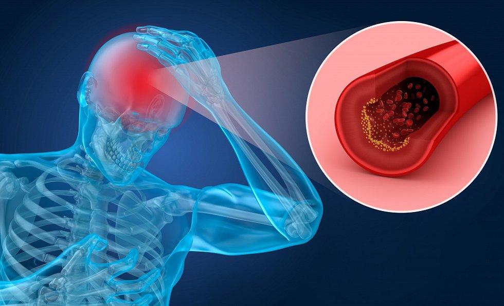 MRTVICE. Rizikové faktory: cukrovka, vysoký krevní tlak, vysoký cholesterol, arytmie, nedostatek pohybu, kouření, obezita