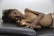 Hladomor ve světě