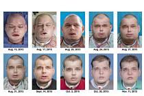 Transplantace obličeje popáleného Patricka Hardisona.