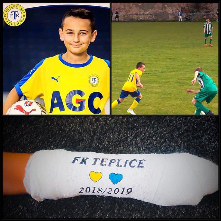 Sportem ku zdraví... fotbal nás baví, fotbal je naše radost ... malý sklář a věrný fanoušek ... sádra z posledního turnaje v Třebíči 14.-15.6.2019 a jak jinak ji vyšperkovat než fotbalově.