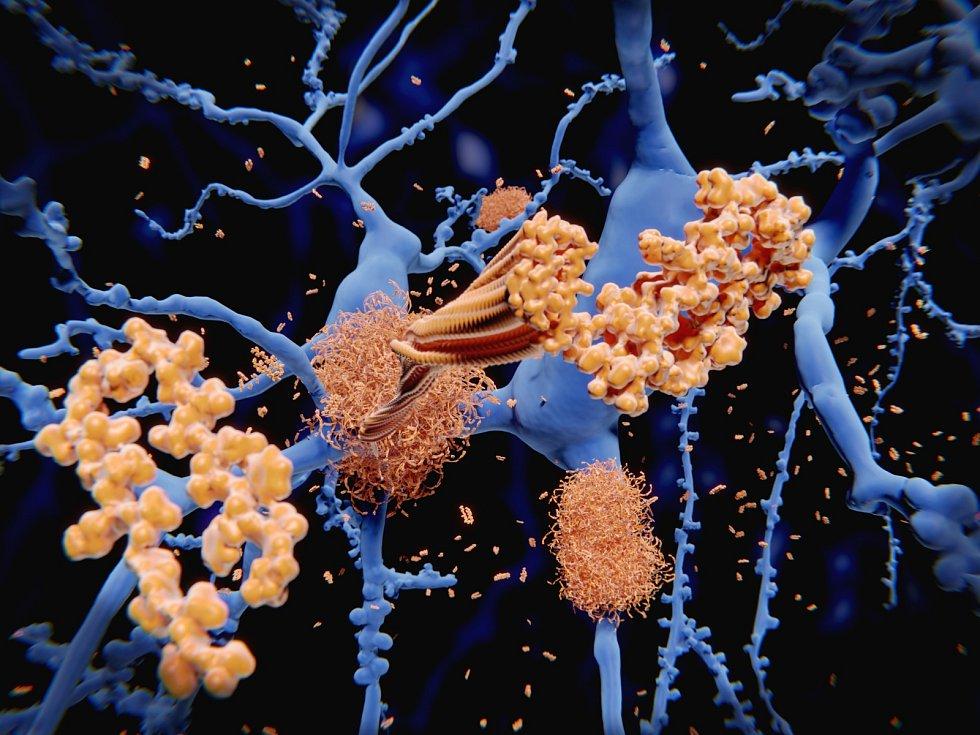Hlavní složkou senilních plaků, nalezených v mozku pacientů s Alzheimerovou chorobou, je vláknitý bílkovinný agregát amyloid beta. Komunikaci nervových spojů s tímto amyloidem může změnit oxytocin
