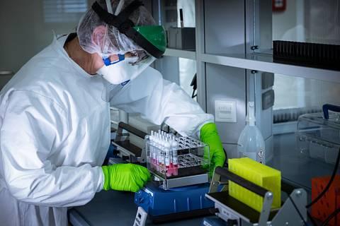 Pracovník laboratoře připravuje kontrolní vzorky na testování na koronavirus