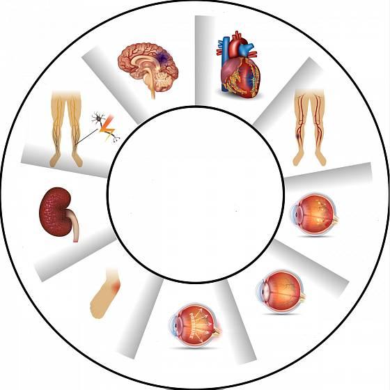 Diabetes. Ilustrační snímek