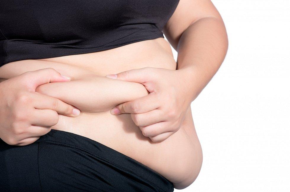 OBEZITA. Rizikové faktory: přejídání, nevhodná skladba potravy s velkým podílem vysoce kalorických jídel, nedostatek pohybu.