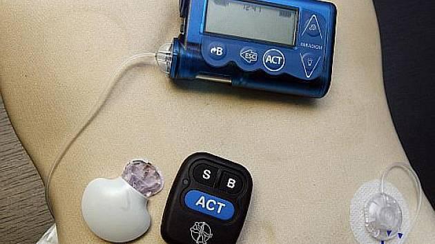 Inzulínová pumpa. Ilustrační foto