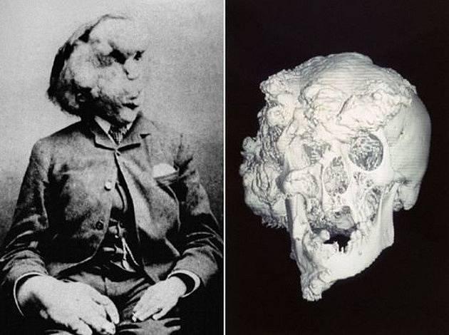 Sloní muž Joseph Merrick a jeho lebka