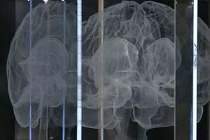 Lidský mozek - ilustrační foto.