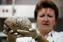 Novináři měli možnost prohlédnout si v rámci Dne mozku oddělení patologie v pražské Thomayerově nemocnici.