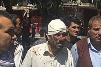 Exploze zranila přes 350 lidí.