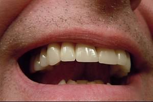 Naděje pro nemocné či po úrazu. Vědci v Japonsku informovali o objevu, který by mohl umožnit opětovný růst zubů.
