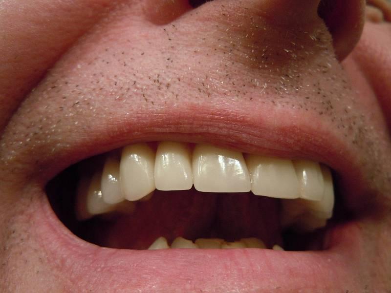 """Co ho na zubařině nejvíce baví? """"Je to jeden z mála oborů medicíny, ve kterém můžete být i v Česku na světové špičce,"""" říká."""