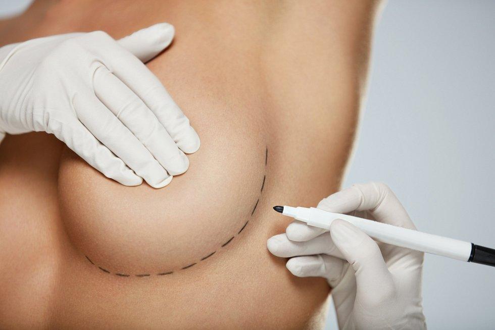 Mnoho žen chce prsa zmenšit, či jim dát pomocí modelace atraktivnější tvar.