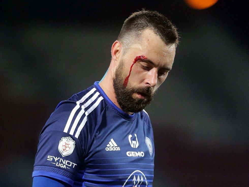 Michal Ordoš z Olomouce si ze zápasu s Baníkem odnesl i krvavé zranění.