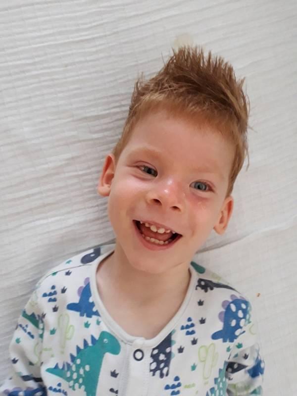 Čtyřletý Daneček z Plzně má za sebou již 38 narkóz. Nádor ho připravil o očičko