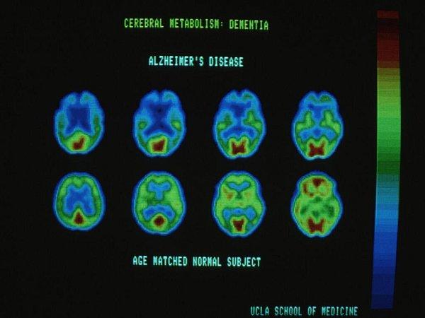 Lidé trpící Alzeimerovou chorobou mají naději. Nový lék objevený britskými vědci se však na trhu objeví nejdříve za pět let. Ilustrační snímek - počítačový scan mozku zasaženého Alzheimerovou chorobou.