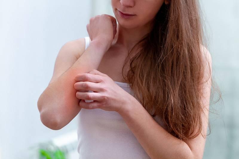 Psoriatická artritida napadá i klouby.
