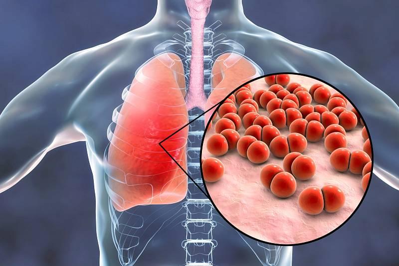 V případě těžších zánětů mohou následky infekcí u starších lidí vést i k trvalým následkům v podobě postižení plic či srdce