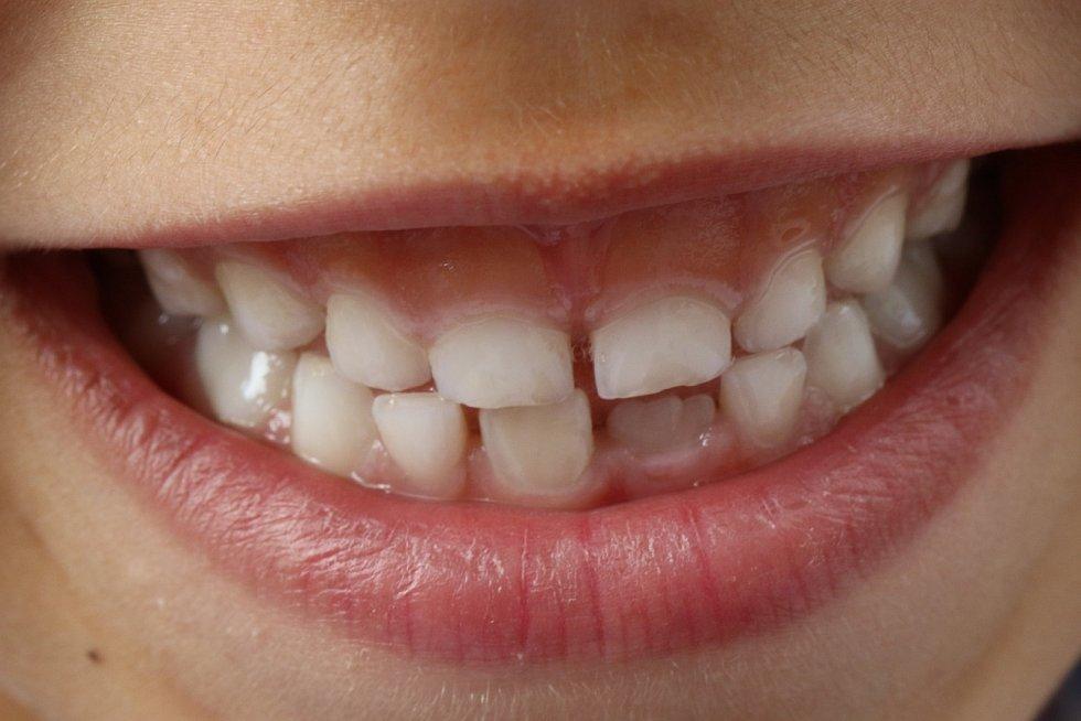 """Jak zabránit tomu, aby už děti měly zkažené zuby? Podle Lukáše Kaloše je nejdůležitější prevence. """"To znamená naučit rodiče čistit zuby a starat se o vlastní orální zdraví,"""" vysvětluje."""